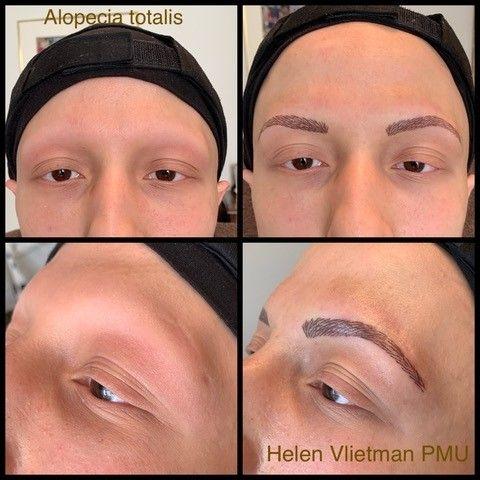 Permanente make-up bij Alopecia